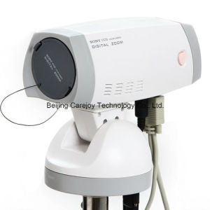 Factory Price Digital Electronic Colposcope (RCS-500) -Fanny pictures & photos