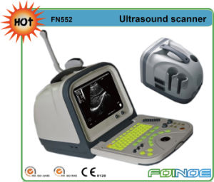 Fn552 Portable Full Digital B Mode Price Ultrasound Scanner pictures & photos