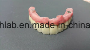 Dental Malo Bridge with Zirconia Crowns From China Dental Lab pictures & photos