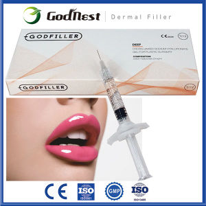 Cross Linked Hyaluronic Acid Injections Deep 1.0ml for Lip Fullness
