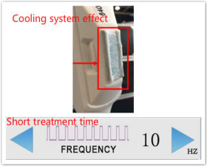 Cooling System Painless 200000 Shots Opt Shr IPL Hair Removal pictures & photos