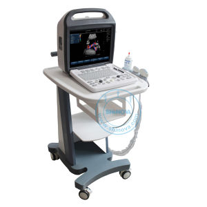 Veterinary Color Doppler System (DopScan 1000V) pictures & photos