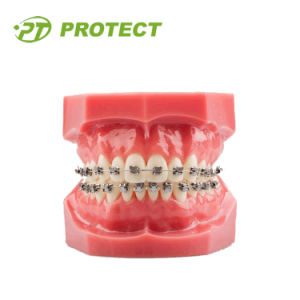 Protect Orthodontic Bracket Self-Ligating Bracket Slot 022