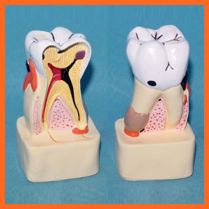 Dental Pathology Demo Model for Doctor-Patient Communication