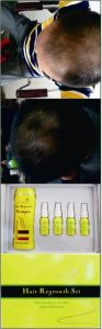 Herbal Anti Hair Loss Hair Regrowth Shampoo