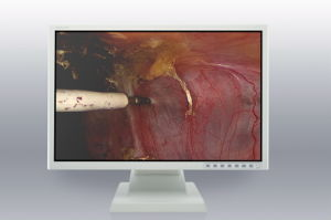 (JUSHA-ES22) Medial Monitor 22 Inch LED Monitor pictures & photos
