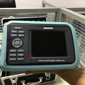 New Medical Products Palmtop Veterinary Ultrasound Scanner for Animal