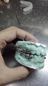 Orthodontic Herbst Occlusal Hinge Made in China Dental Lab pictures & photos