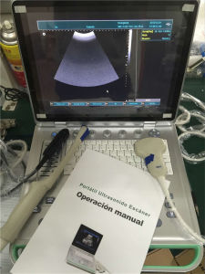 B Scanner PC Based Laptop Ultrasound Scanner Ultrasound Machine pictures & photos
