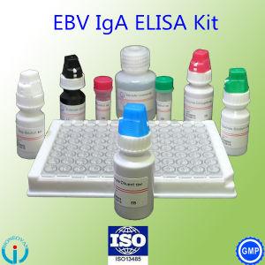 OEM Ebv Elisa Test Kit Epstein-Barr Virus Blood Group Test Reagent