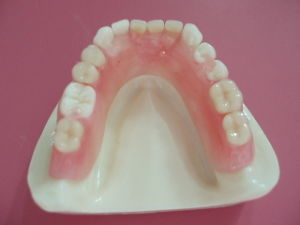 Flexible Denture or Valplast Denture with Good Biocomputilility Made in China Dental Laboratory pictures & photos