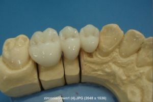 Hot Sale China Top 10 Mantufacture for Dentures of Zirconia pictures & photos