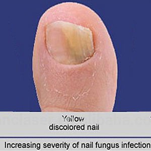 Nail Fungus Laser Therapy Device Popular at India Medical Fair pictures & photos