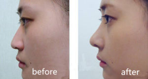 2ml Reshaping Nose Hyaluronic Acid Dermal Injection Filler Ha Gel