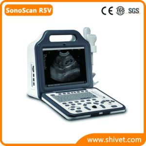 Portable Full Digital Veterinary Ultrasound System (SonoScan R5V) pictures & photos