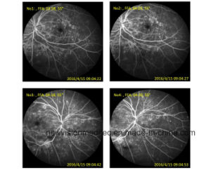 Confocal Retina Ophthalmoscope pictures & photos