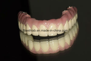 Dental Implant Supported Fullarch Porcelain Bridge pictures & photos