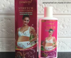 China Qiansoto Snail Essence Stretch Marks Cream Scars Remover Cream ...