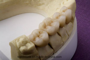 Denture Porcelain Bonded to Metal Crowns Made in China Dental Lab pictures & photos