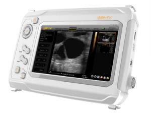 Excellent Imaging Portable Handheld Ultrasound Machine Scanner (sonomaxx300) pictures & photos