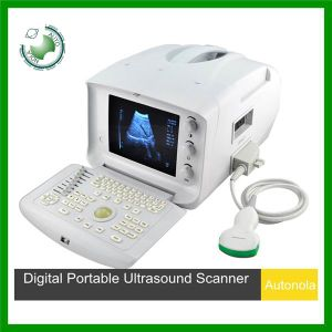 Atnl51353A Black and White Portable Ultrasound Scanner