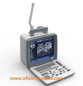 Portable Full Digital Ultrasound Mianyang Xianfeng Ultrasound