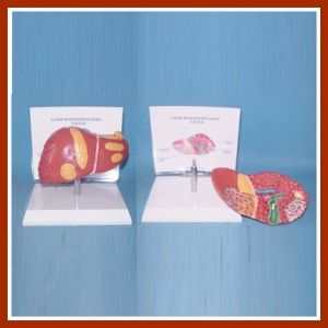 Human Common Pathologies of Liver Model with Description Plate