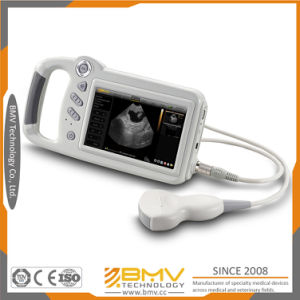 Cheap Price for Portable Human Ultrasound Machine (sonomaxx200) pictures & photos
