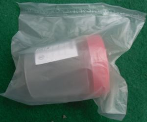 Medical Consumables 120ml Sterile Urine Container pictures & photos