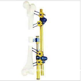 German Type Titanium Tibia External Fixator