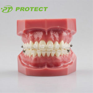 Orthodontic Teeth Model with Brackets and Tubes