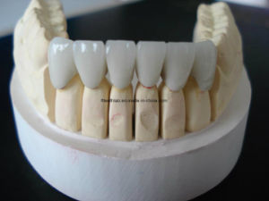 Bright Aesthetic Dental Emax Crown pictures & photos