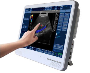 22 Inch Screen Portable Color Doppler Ultrasound pictures & photos
