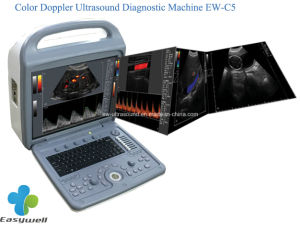 Affortable Color Doppler Ultrasound Machine Ew-C5 with Convex Probe C3r60 and Linear Probe L7l40 for Vascular and Pediatrics