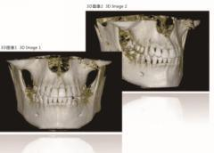 Hot Selling 3D Dental Panoramic Digital X Ray Imaging System pictures & photos