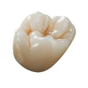 Cocr Alloy Crowns with Ivoclar Ceramic Outside pictures & photos