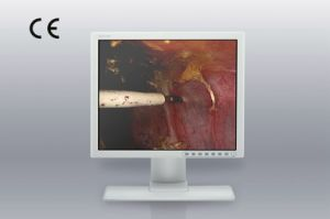 19-Inch 1280X1024 LCD Screen, CE, Monitor for Colonoscopy Equipments pictures & photos