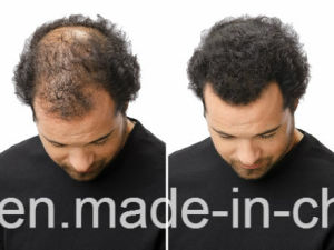 Sevich Natural Hair Loss Solution Thickening Hair Fiber Hair Color pictures & photos