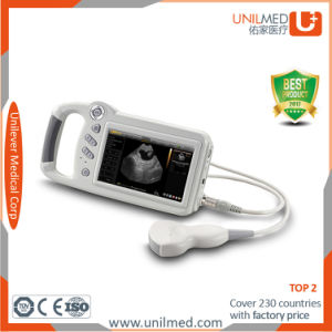 Cheap Ultrasound Machine Human Hospital Portable Ultrasound Scanner (sonomaxx200) pictures & photos