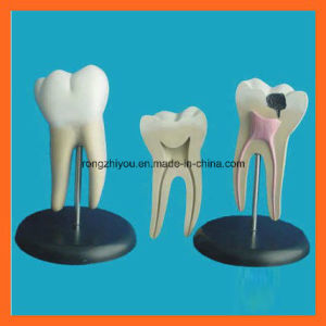Giant Molar Anatomical Teeth Dentistry Model