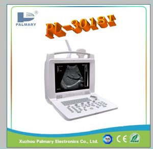 Portable Ultrasound Machine and Ultrasound Scanner and Ultrasound Device pictures & photos