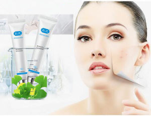 China Herbal Best Anti Acne Scar Removal Cream China Face Scar
