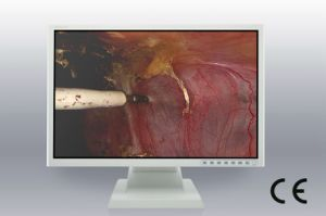24-Inch 1920X1200 LCD Screen, CE, Monitor for Colonoscopy Equipments pictures & photos