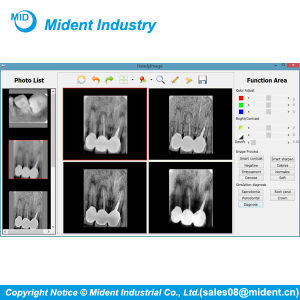 High Efficiency Shanghai Handy China X-ray Dental Rvg Sensor pictures & photos
