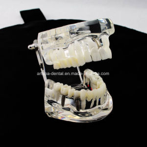 Dental Implant Disease Teeth Model with Restoration & Bridge Tooth pictures & photos