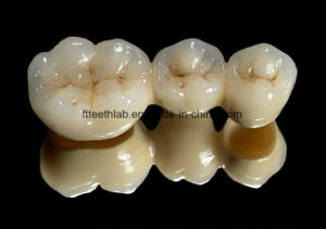Pfm Crowns and Bridge for Dental Treatment Restorations pictures & photos