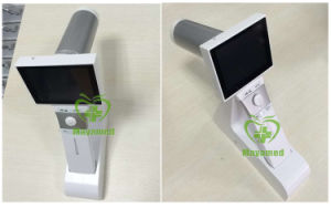 My-V038 Maya Medical Hand-Held Fundus Camera pictures & photos