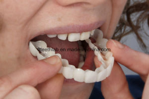 Full Arch Teeth Guard for Smile Solution pictures & photos