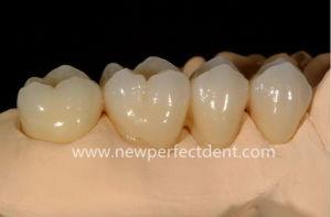 supplies dental zirconia crowns and bridge