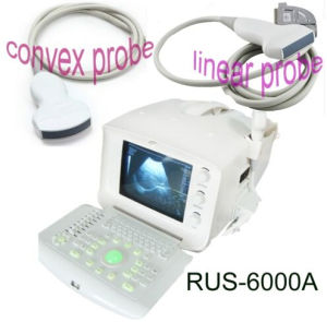 CE ISO Approved Portable Ultrasound Scanner (RUS6000A) with Convex Linear Transvaginal Probe Optional pictures & photos